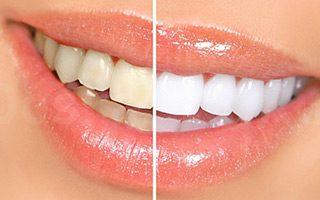 Veneers - Kosmetische Zahnheilkunde
